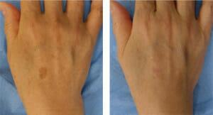 bbl-hand-rejuvenation