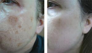 bbl-large-pores