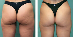 cellulite-bodyexilis