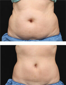 coolsculpting-body