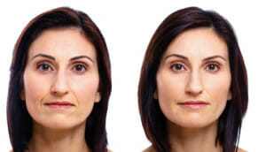 dermal-filler-face
