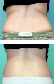exilis-back-unwanted-fat