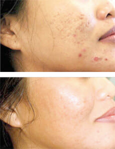 profractional-acne-scars