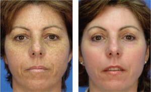 profractional-face