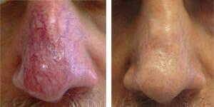 redness-nose