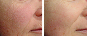 skin-texture-tone