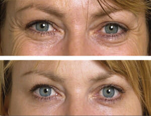 botox-crowsfeet-eyes