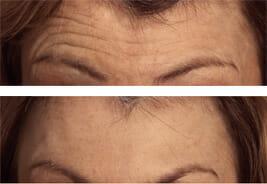 botox-wrinkles-face