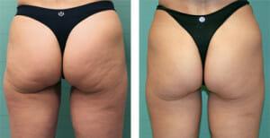 cellulite-bodyexilis
