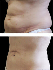 cool-sculpting-unwanted-fat
