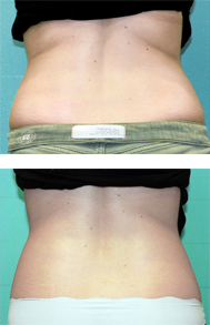 exilis-back-unwanted-fat