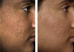 fraxel-acne-scars