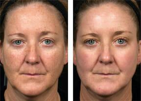 fraxel-restore-face