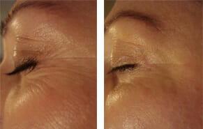 microdermabrasion-large-pores-1