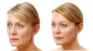 softlift-wrinkles-face