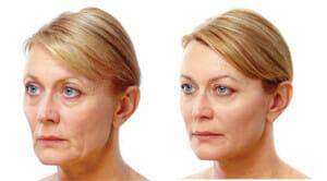 softlift-wrinkles-face